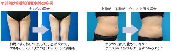 超強力脂肪溶解注射の症例