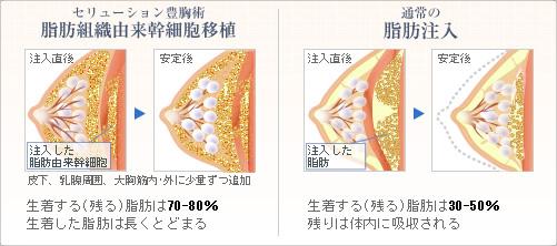 比較図:セリューション豊胸術と通常の脂肪注入