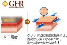 写真:GFRテクノロジー
