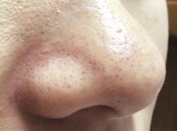 [ニキビ・化粧崩れ・いちご鼻に] 皮脂腺凝固法(小林メソッド)